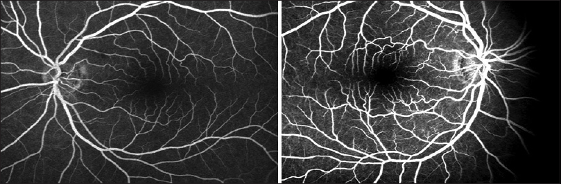 Figure 4: Fluorescein angiography shows no abnormalities on the left or right eye