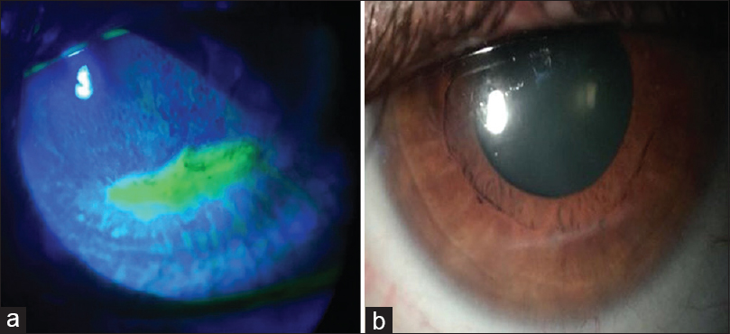 Figure 2: (a) Inferior corneal epithelial defect. (b) Inferior corneal epithelial defect after 1 month of treatment
